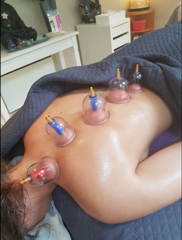 BC Cupping